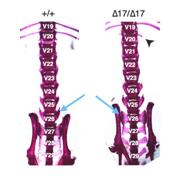 skeleton17